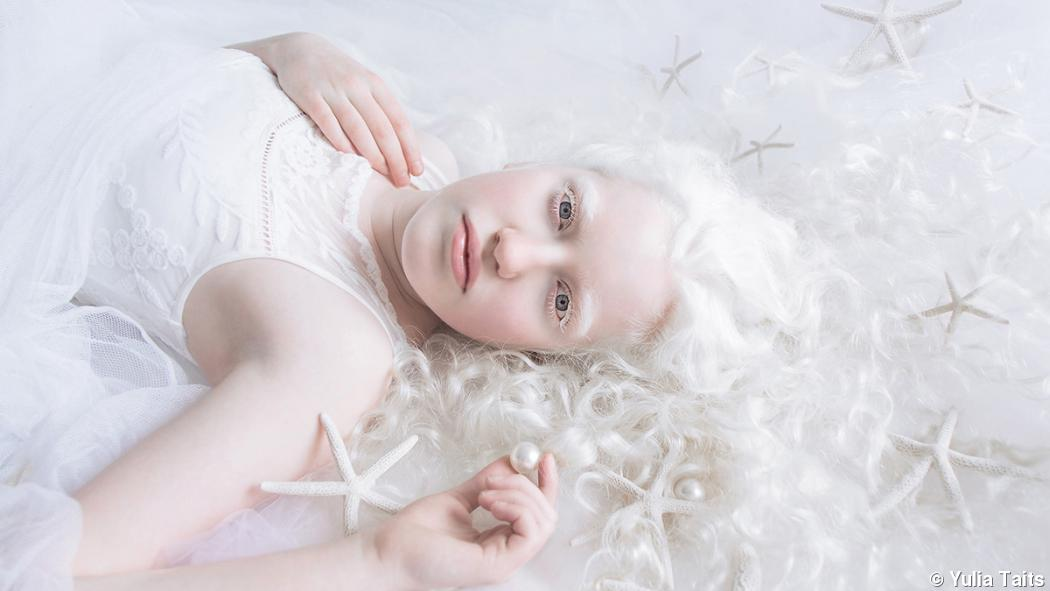 Portrait series conveys the beauty of albinism